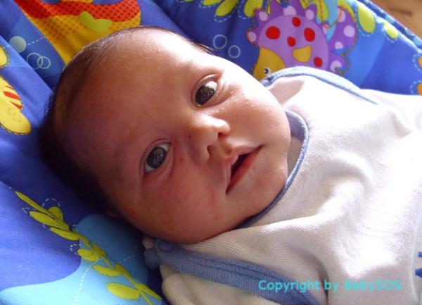 Bild: Baby mit Milien im Gesicht