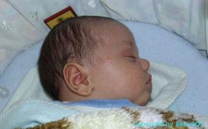 Baby mit Hitzepickeln im Gesicht