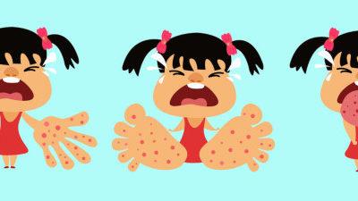 Hand-Fuß-Mund-Krankheit beim Baby