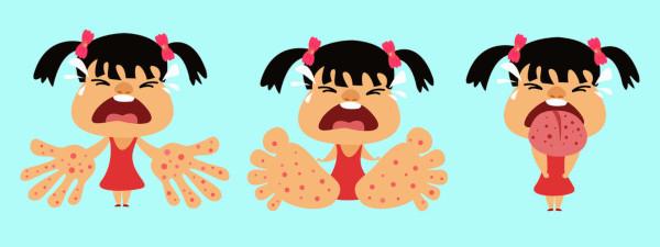 Bild: HMFK: Hand-Mund-Fuß-Krankheit: Symptome beim Kleinkind