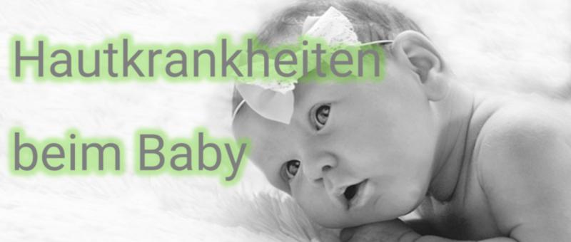Hautkrankheiten beim Baby